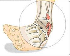 ankle injuries physio