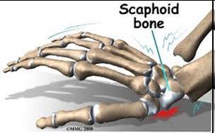 scaphoid physio