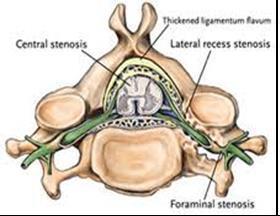 spinal stenosis 2