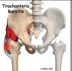 trochanteric bursitis physio
