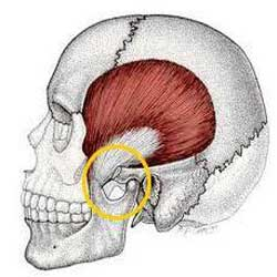 Temporomandibular joint problems