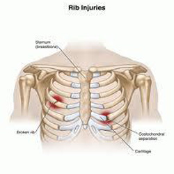 Rib Injuries – Physio Treatment