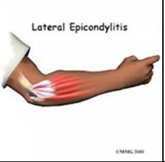 tennis elbow physio