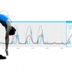 DorsaVi technology at Move Well Physiotherapy